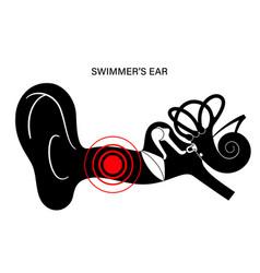 Swimmers ear otitis vector