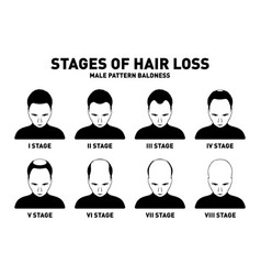Hair loss stages and types of male hair loss male vector