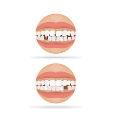 Bad tooth vector