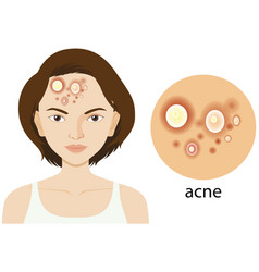 Diagram showing woman with acne problem vector
