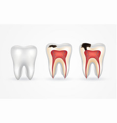 tooth caries and healthy tooth superficial caries vector image