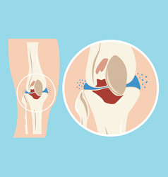 Damaged human knee joint cartilage injuries vector