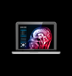 notebook monitor with medical mri and other real vector image