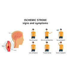 Ischemic stroke signs and symptoms infographic vector
