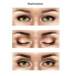 Blepharoplasty suture stitches composition vector