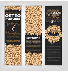 osteoporosis banners set vector image