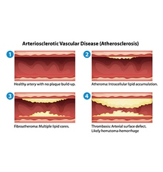 Ateriosclerosis vector image