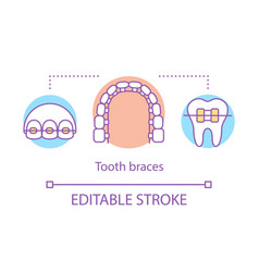 tooth braces concept icon vector image