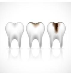 Teeth realistic set vector image vector image