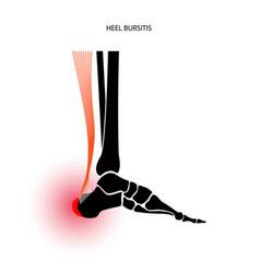 Bursitis inflammation concept vector