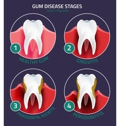 Teeth infographic Gum disease stages vector image