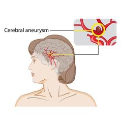 Cerebral aneurysm vector image vector image