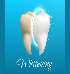 teeth whitening concept with clean and dirty tooth vector image vector image