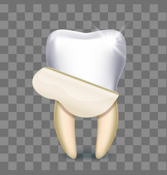 Tooth veneer whitening dental technician vector