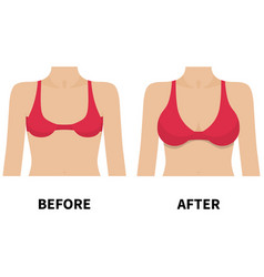 female breast before and after plastic surgery vector image