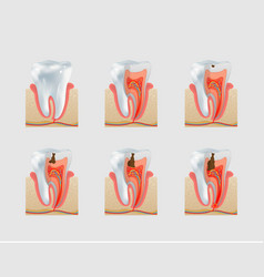 Healthy tooth and dental caries icon set vector