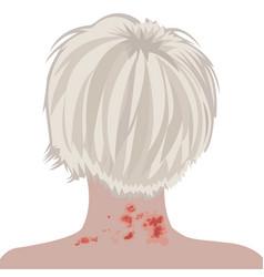 Shingles on a woman neck vector