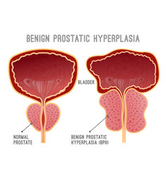 Prostate disease infographic vector