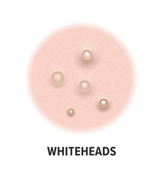 Whiteheads skin acne type icon skin disease acne vector