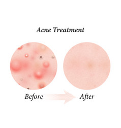 Skin acne treatment before and after acne vector