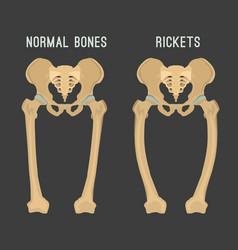rickets scheme vector image