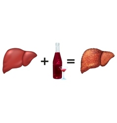 Healthy liver and alcohol get cirrhosis vector