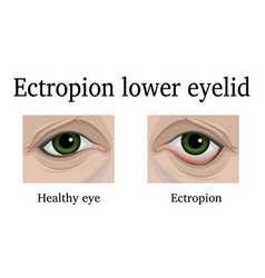 Ectropion of the lower eyelid vector