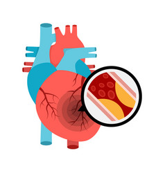 Human heart anatomy with heart attack vector