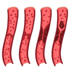 Blood clot diagram on white vector image vector image
