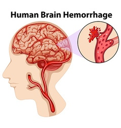Diagram of human brain hemorrhage vector