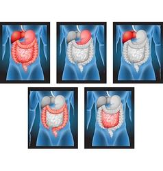 X-ray films of human organs vector image