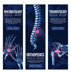 Medical banners rheumatology traumatology vector