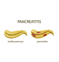 Pancreas healthy and pancreatitis vector