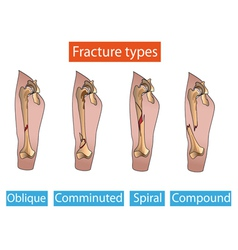 types fractures vector image