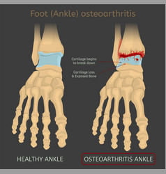 Foot arthritis image vector