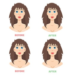 Plastic surgery otoplasty rhinoplasty before and vector image vector image