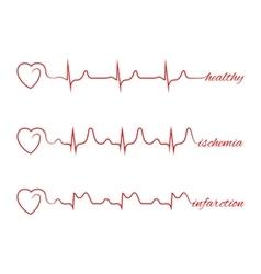 Heart beats various cardiogram set vector image