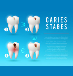 Tooth decay 3d poster dental caries development vector
