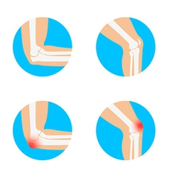 knee and elbow vector image