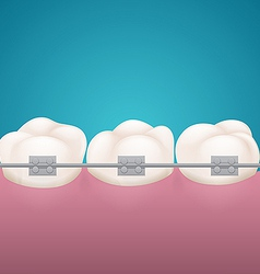 Three teeth in ginival with staples vector image vector image