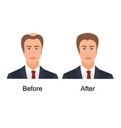 Man with alopecia before and after hair treatment vector