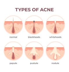 Acne types anatomy pimple diseases sectional view vector