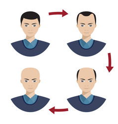 four stages of hair loss for men vector image