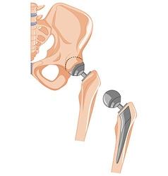 Diagram hip bone treatment vector