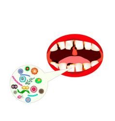 caries smell from mouth halitosis the vector image