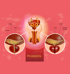 Prostatitis realistic medical scheme vector