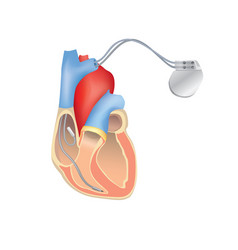 Heart pacemaker in work human heart anatomy with vector
