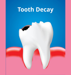 Tooth decay with inflamed gum dental care concept vector
