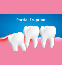 Wisdom tooth partital eruption with vector