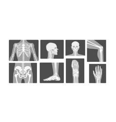 Creative radiology skeleton bones realistic x-ray vector